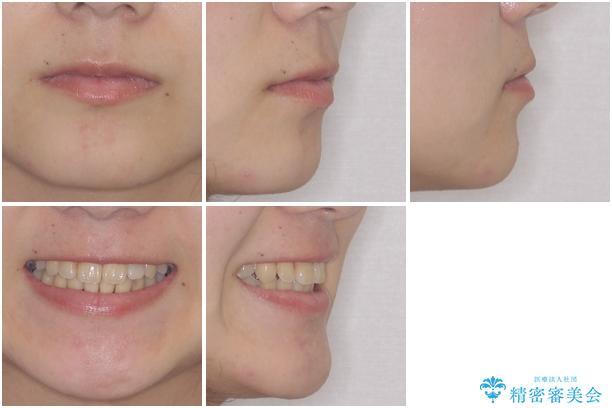内側に倒れた歯並びの改善 クリアブラケットによる矯正治療の治療後(顔貌)