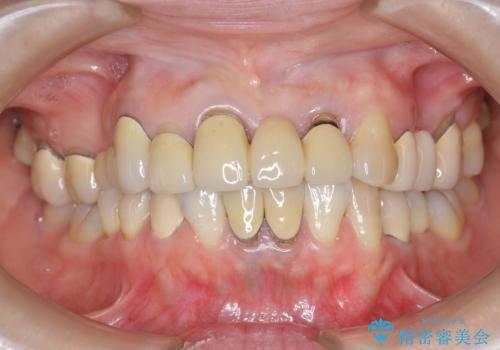 前歯ブリッジのやりかえの治療前