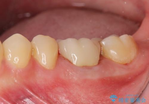 放置してしまった歯 根管治療からの機能回復の症例 治療後