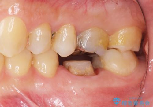 放置してしまった歯 根管治療からの機能回復の治療中