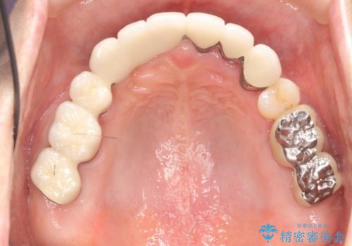 咬合性外傷による歯槽骨吸収 ブリッジ補綴の治療後