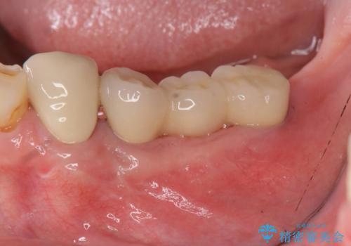 [嘔吐反射がひどく義歯がつけられない] 臼歯部インプラント補綴 の治療後