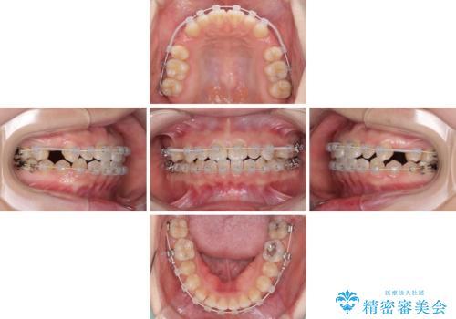 矯正治療とインプラント治療を同時に 総合歯科診療の治療中