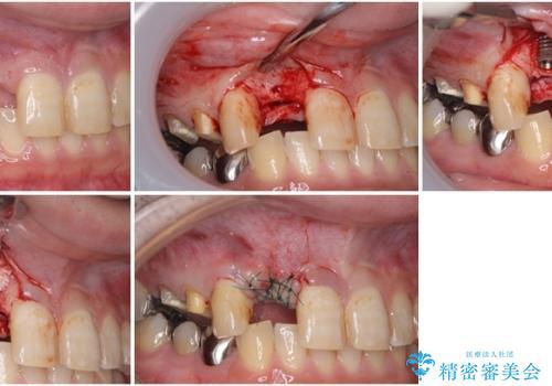 割れてしまった前歯 インプラントによる補綴治療の治療中