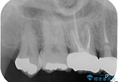 奥歯の根管治療~オールセラミッククラウンの治療後