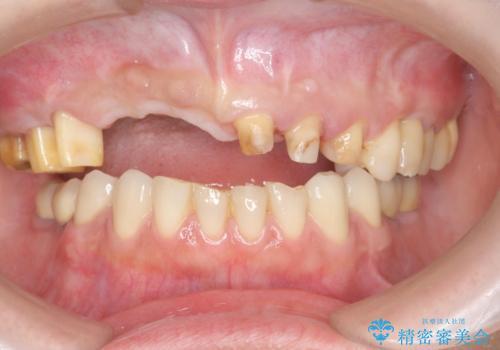 咬合性外傷による歯槽骨吸収 ブリッジ補綴の治療前