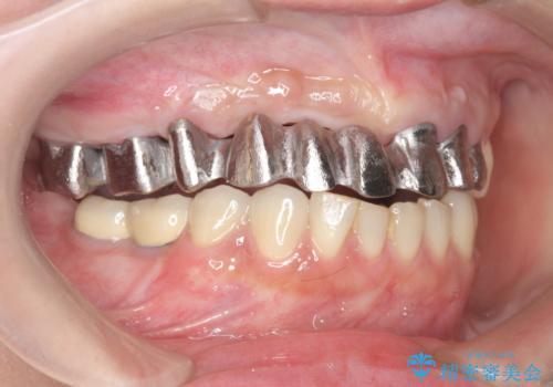 咬合性外傷による歯槽骨吸収 ブリッジ補綴の治療中
