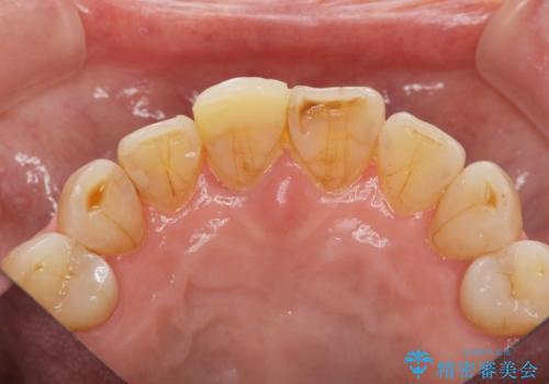 天然歯を模した ハイグレードオールセラミッククラウンの治療前