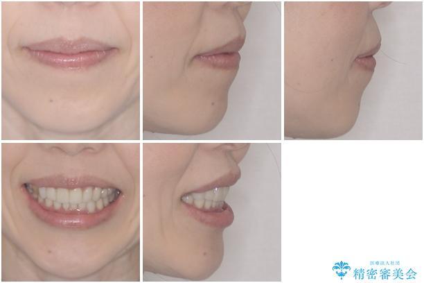 この際全てをしっかりと治療したい 総合歯科治療の治療後(顔貌)