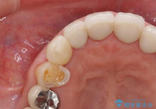 クラウン下に再発した深い虫歯 インプラントによる機能回復の治療後
