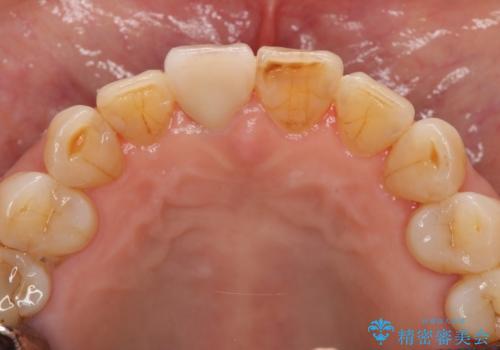 天然歯を模した ハイグレードオールセラミッククラウンの治療後