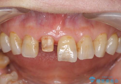 天然歯を模した ハイグレードオールセラミッククラウンの治療中