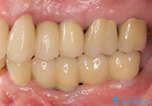 虫歯による歯の喪失 インプラントによる咬合機能回復の症例 治療後