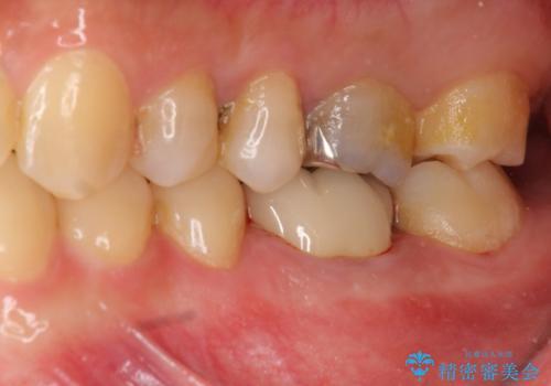 放置してしまった歯 根管治療からの機能回復の治療後