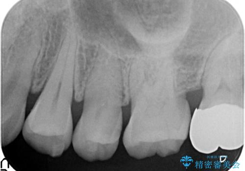虫歯の治療。ゴールドインレーによる治療の治療前