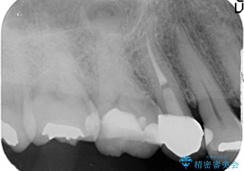 奥歯の根管治療~オールセラミッククラウンの治療前