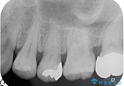 虫歯の治療。ゴールドインレーによる治療の治療後