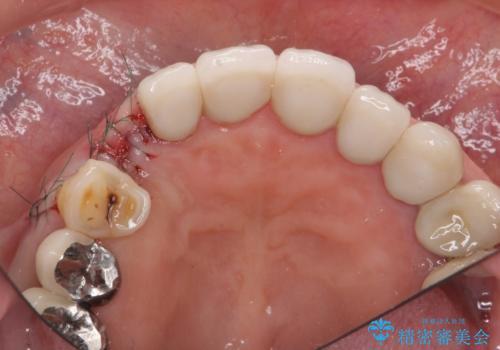 クラウン下に再発した深い虫歯 インプラントによる機能回復の治療中