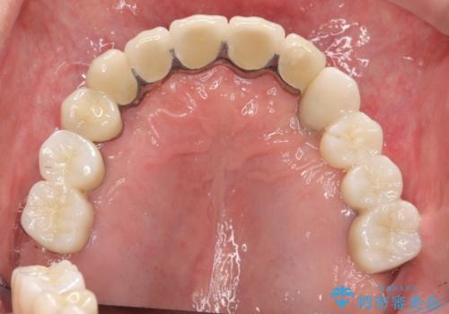 [歯周病治療]  歯周補綴 インプラント補綴の症例 治療後