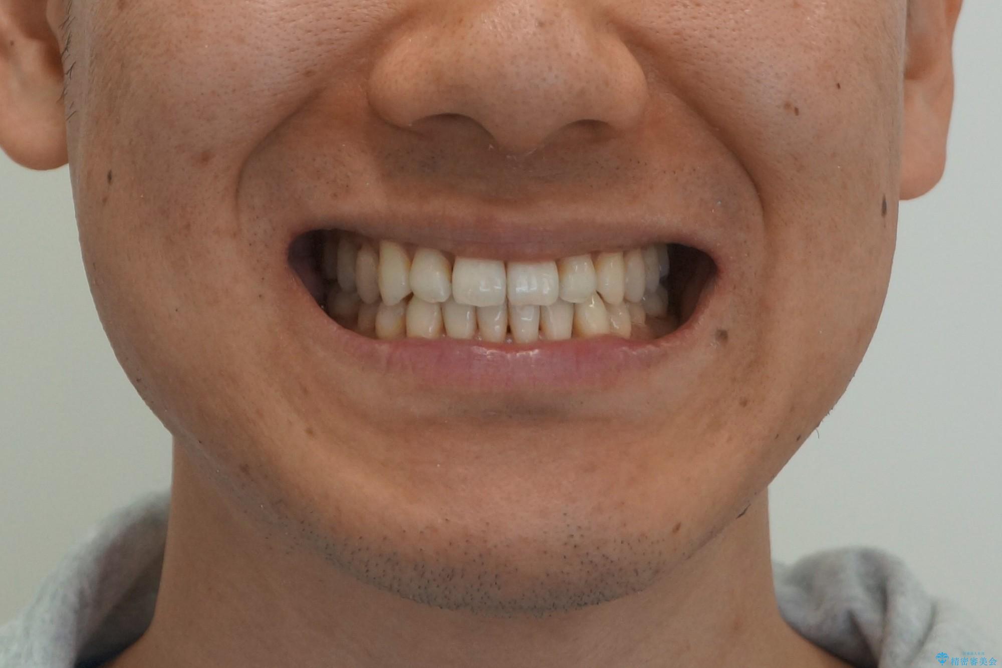 受け口 マウスピースで矯正治療 難易度:中の治療後(顔貌)