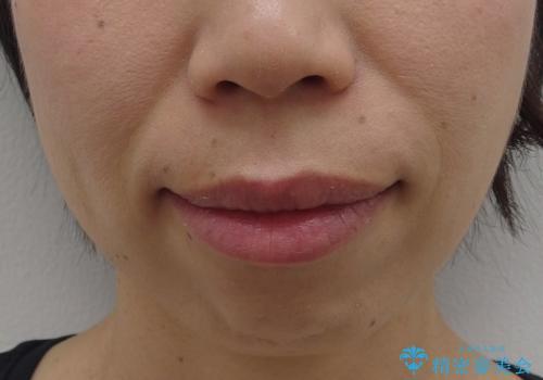 口ゴボでお悩みの方必見! 不自然なセラミックをやり直す矯正 セラミックだけでは、口元は下がりません。の症例 治療前