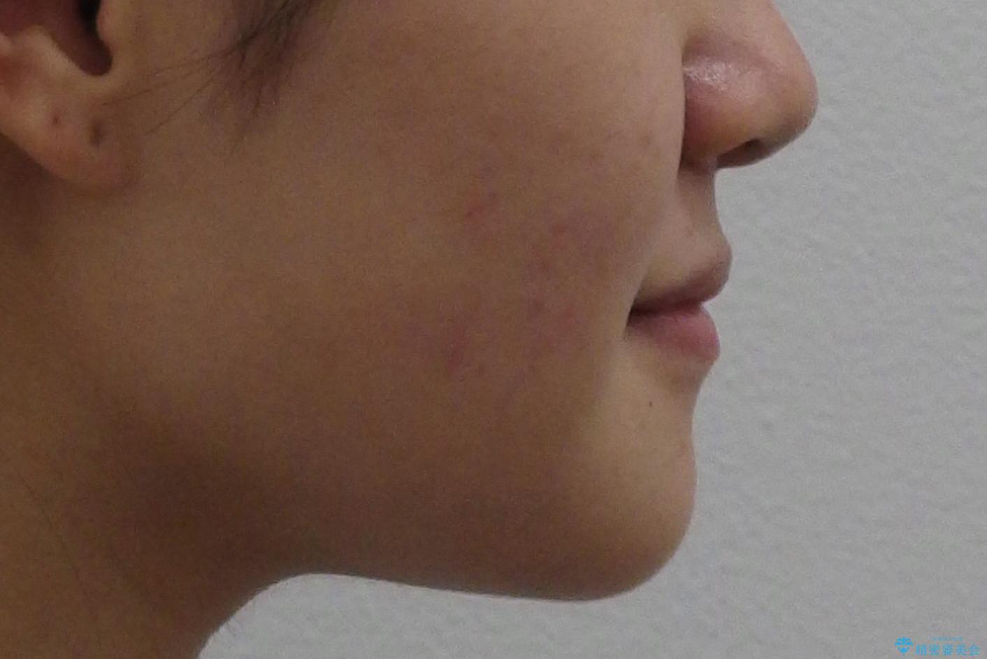 受け口 親知らずを取り込む矯正治療の治療前(顔貌)
