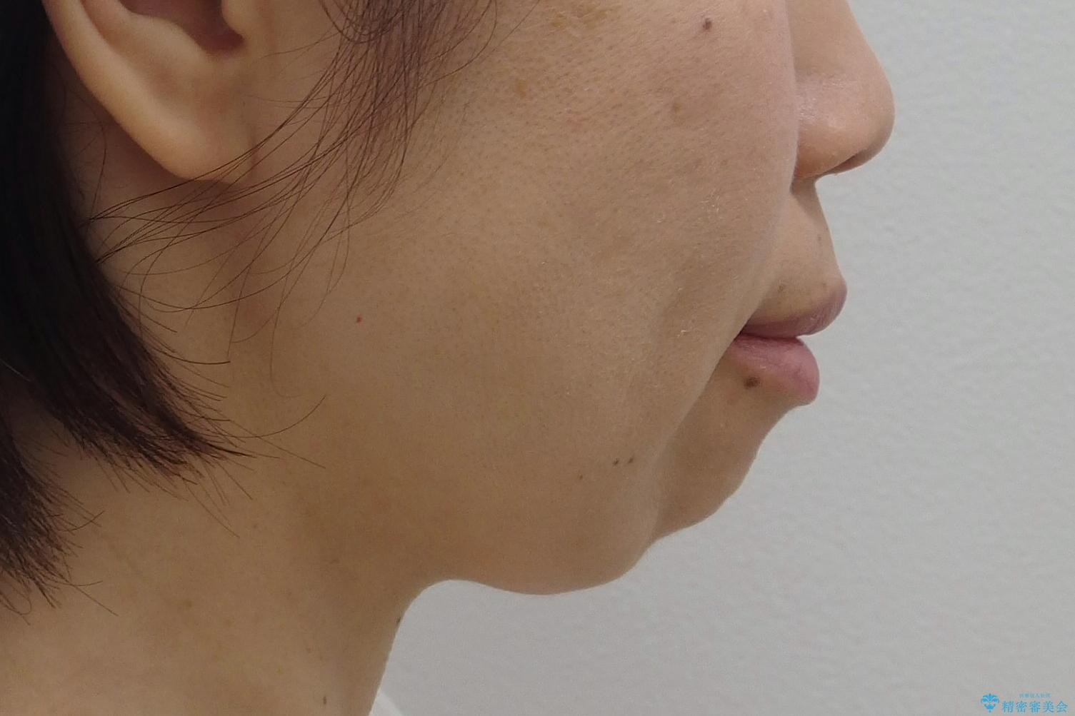 口ゴボでお悩みの方必見! 不自然なセラミックをやり直す矯正 セラミックだけでは、口元は下がりません。の治療前(顔貌)