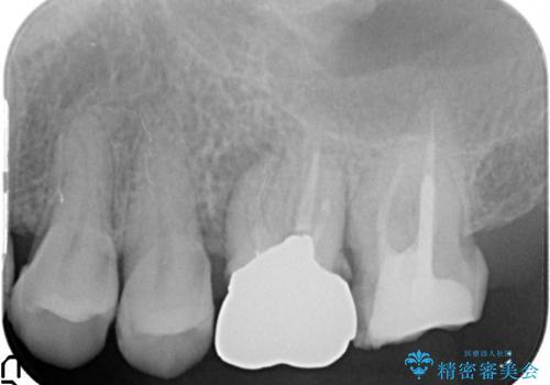オールセラミッククラウン 疼く奥歯の治療の治療前