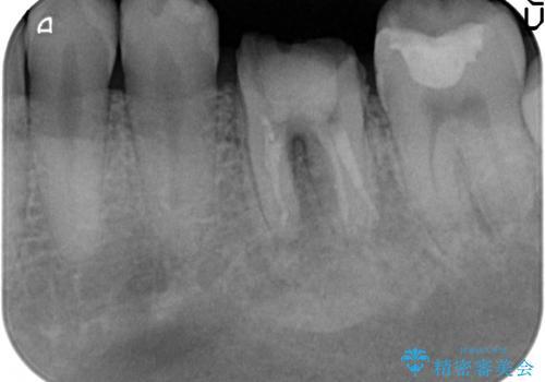 放置してしまった歯 根管治療からの機能回復の治療前
