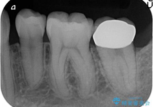 オールセラミッククラウン 奥歯の虫歯・深いポケットの除去の治療後