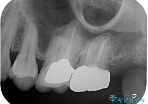 痛みの続いた歯を原因から治療の治療後