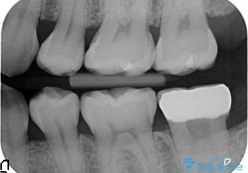他院で次に虫歯になったら治せないと言われた 歯周外科手術でしっかり治療(APF)の治療後