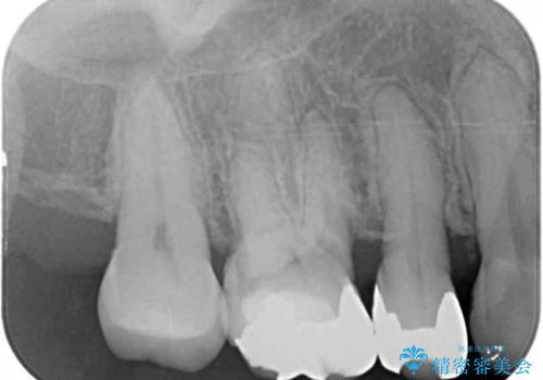奥歯の深い虫歯をオールセラミックで治療の治療前