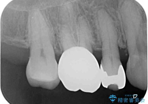 奥歯の深い虫歯をオールセラミックで治療の治療後