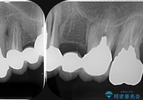 虫歯による歯の喪失 インプラントによる咬合機能回復の治療前