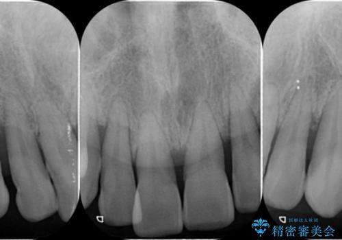 [歯周病治療]  歯周補綴 インプラント補綴の治療前