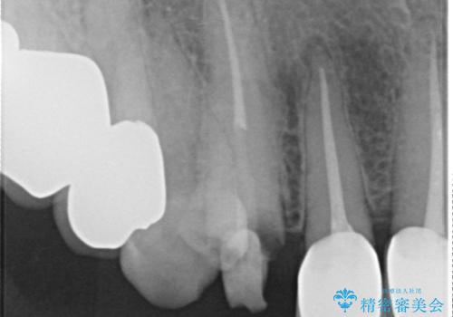 クラウン下に再発した深い虫歯 インプラントによる機能回復の治療前