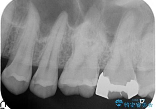 セラミックインレー 虫歯と指摘された奥歯の治療の治療前