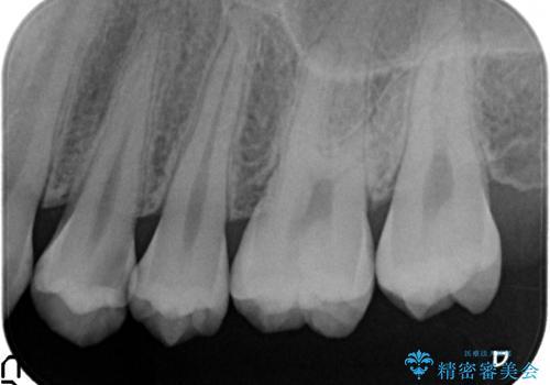 セラミックインレー 虫歯で欠けた歯の治療の治療前