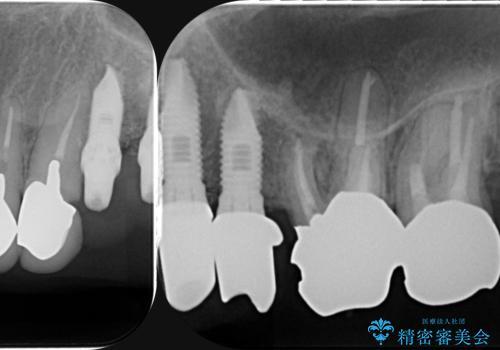 虫歯による歯の喪失 インプラントによる咬合機能回復の治療中