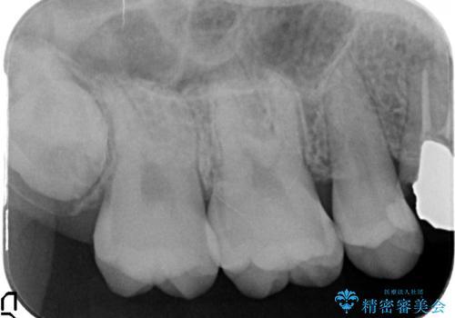 セラミックインレー 痛む歯の治療の治療前