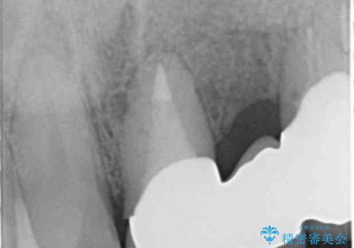 歯が折れた どうしても抜きたくない 歯の牽引で保存可能にの治療後