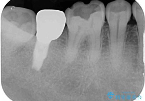 外れてしまった奥歯の銀歯 ゴールドインレーによる虫歯復療の治療前