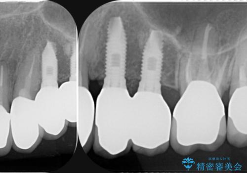 虫歯による歯の喪失 インプラントによる咬合機能回復の治療後