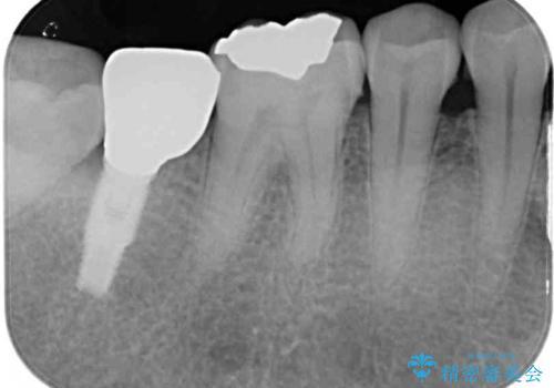 外れてしまった奥歯の銀歯 ゴールドインレーによる虫歯復療の治療後