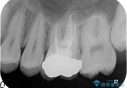 オールセラミッククラウン ズキズキ痛む歯の治療の治療後
