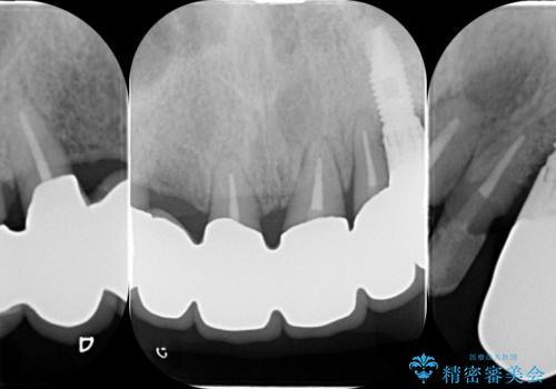 [歯周病治療]  歯周補綴 インプラント補綴の治療後