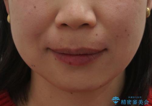口ゴボでお悩みの方必見! 不自然なセラミックをやり直す矯正 セラミックだけでは、口元は下がりません。の症例 治療後