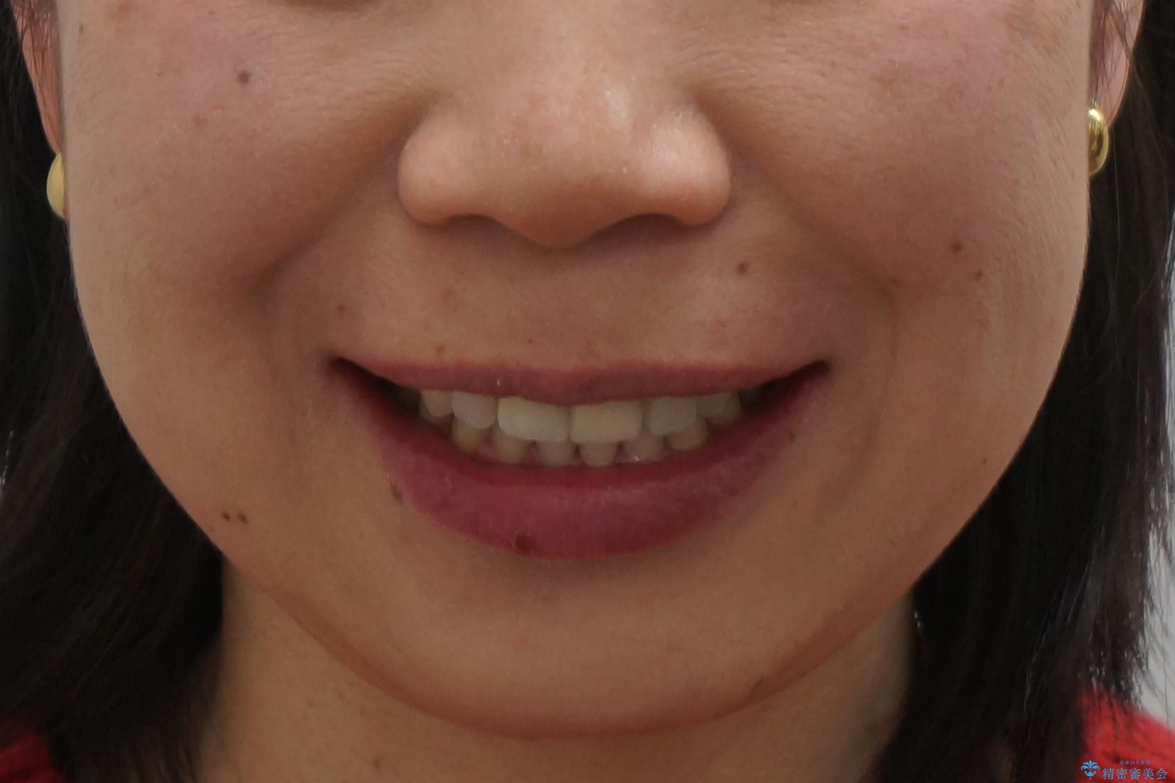 口ゴボでお悩みの方必見! 不自然なセラミックをやり直す矯正 セラミックだけでは、口元は下がりません。の治療後(顔貌)
