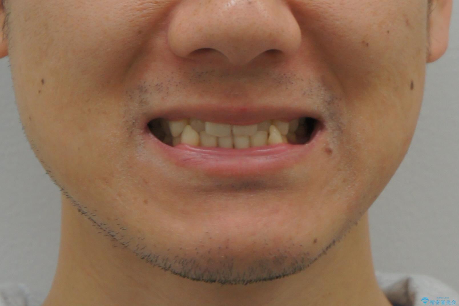 受け口 マウスピースで矯正治療 難易度:中の治療前(顔貌)